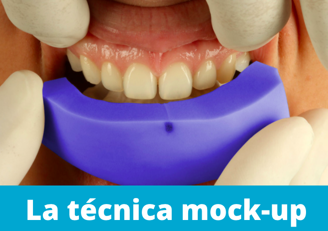 técnica mock-up