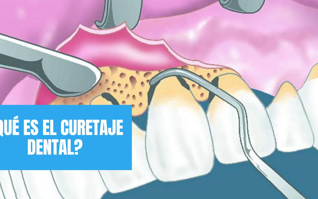 ¿Qué es el curetaje dental y cuándo es necesario hacerlo?