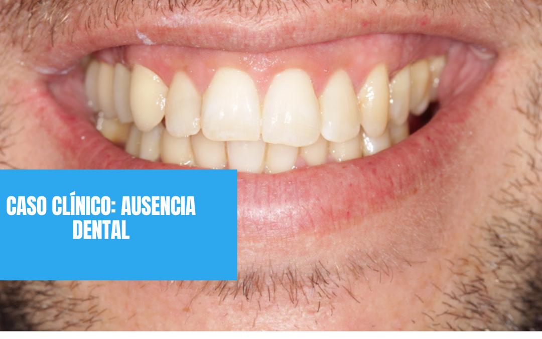 Caso clínico: ausencia dental