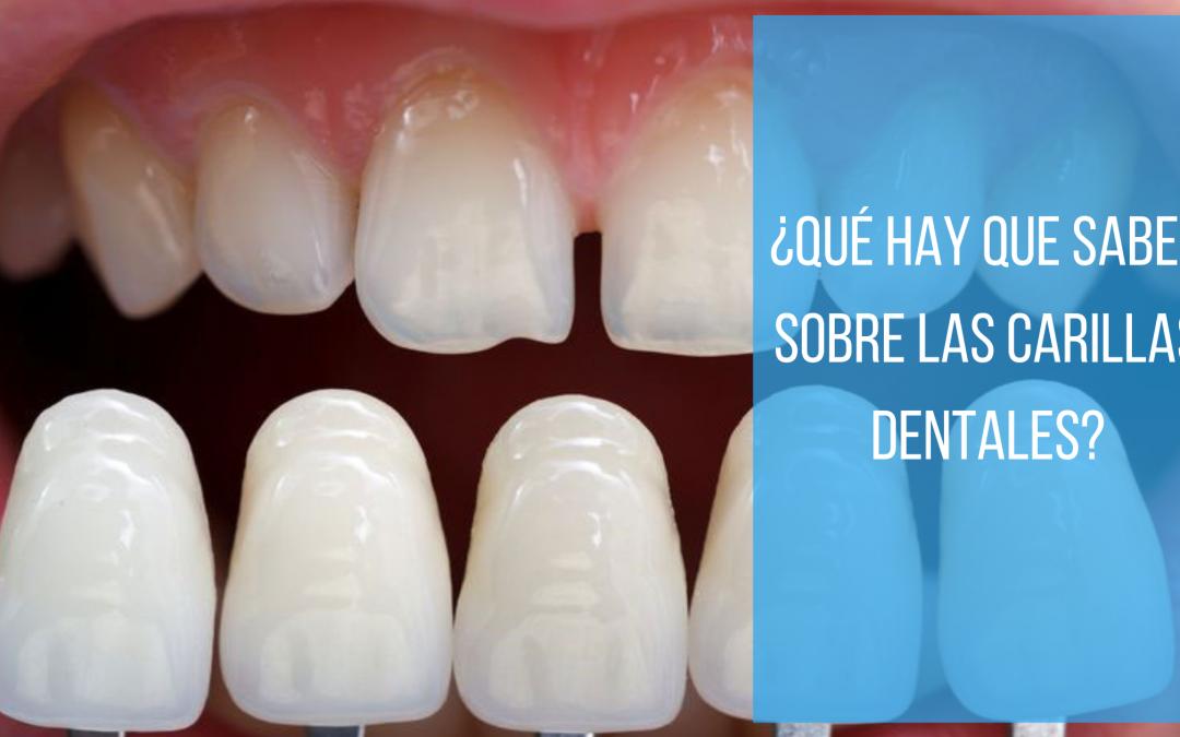 ¿Qué hay que saber acerca de las carillas dentales?