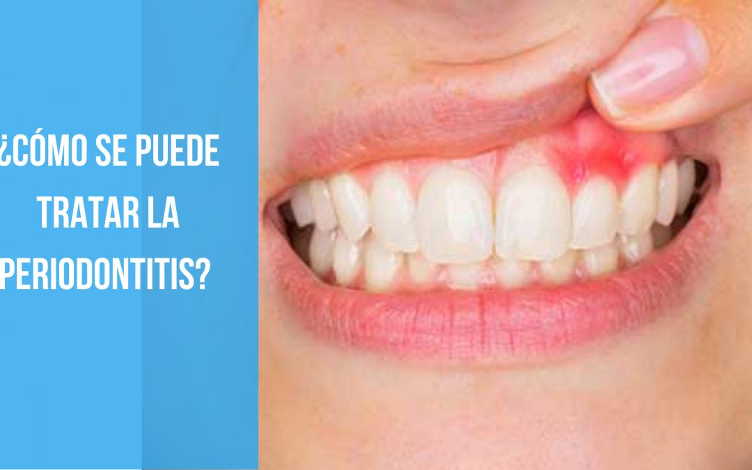 ¿Cómo se puede tratar la periodontitis?